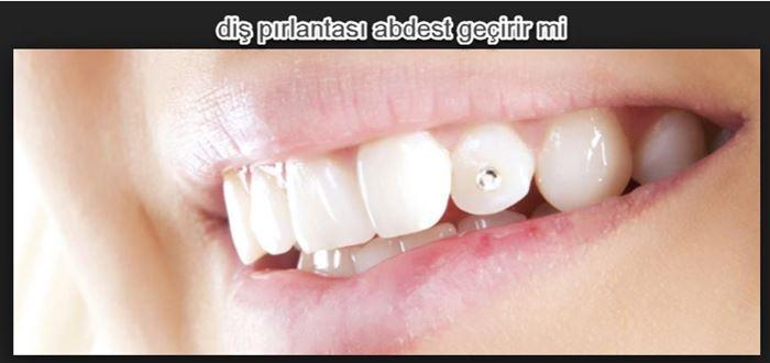 Dişe takılan pırlanta veya taş ile gusül abdesti kabul olunurmu